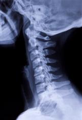 compression of C5-6 vertebrae